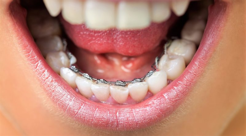 Close up of lingual braces